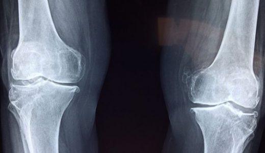 軟骨再生にサプリメントは効果あり?原因や対策を解説します!